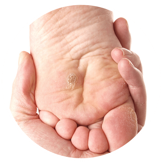 Plantar Wart Treatments Markham Chiropodist Mt Joy Foot Clinic